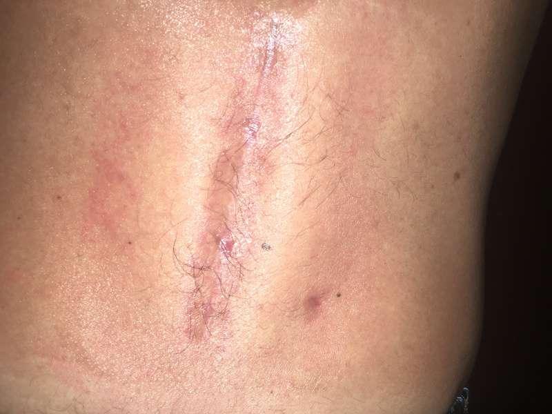 Cicatrice post operatoria