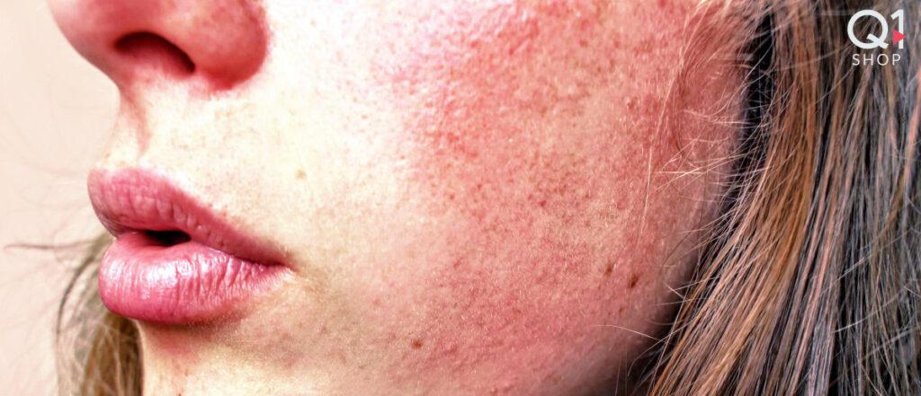 Arrossamenti ed irritazioni della pelle Q Protective