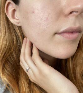opinione q acne complex
