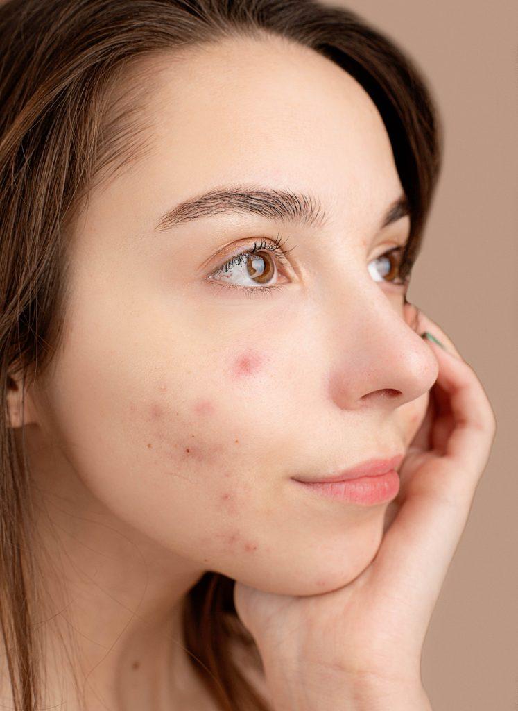 acne come combatterla