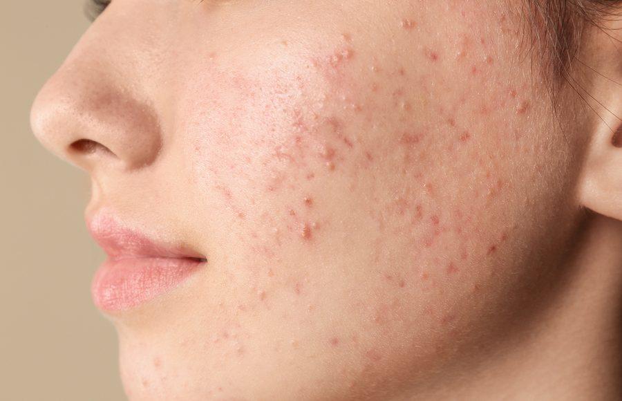 acne sul viso di una giovane ragazza
